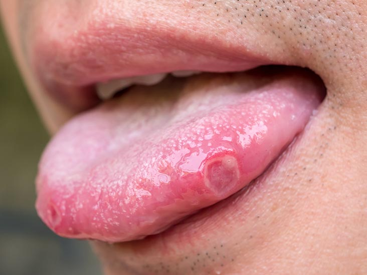 Tongue Diseases: Symptoms, Prevention, and Cure.