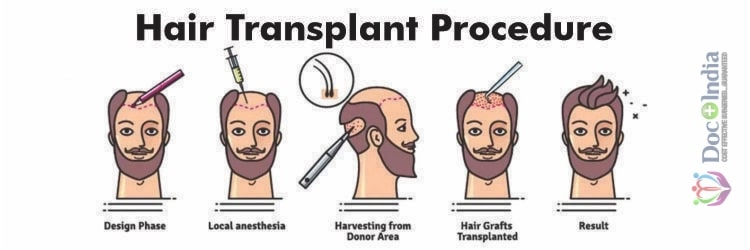 An Overview of Hair Transplant Procedure